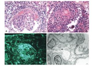 Glomerulonepritis
